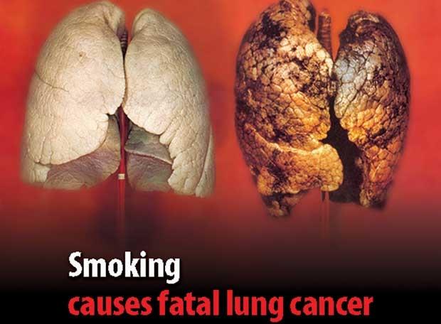 Los efectos que causan:El tabaquismo y el alcoholismo+otros